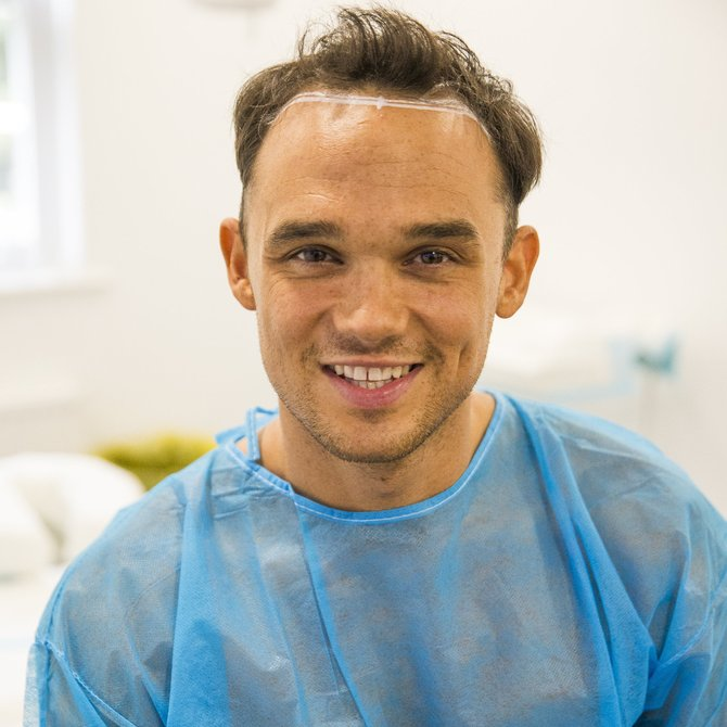 Gareth Gates Takes Big Step To Solve Thinning Hair And Results Are Amazing