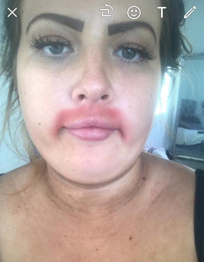 Woman left with embarrassing burns after moustache removal cream